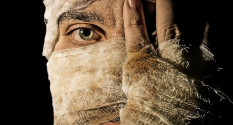 burn-victim-with-medical-bandages-covering-his-face-shutterstock-800x430